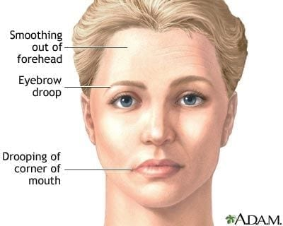 Allied Health Support Services Lower Motor Neuron (LMN) Facial Weakness Image 2